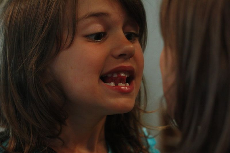 Sydney loses first top tooth 011